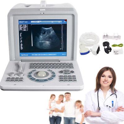 Portable Digital Diagnostic Machine Ultrasound Scanner Curved Transducer 3d A