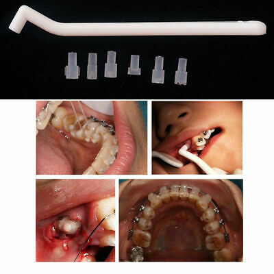1xorthodontic Dental Making Tongue Buckle Mini Lingual Button Accessories Mould