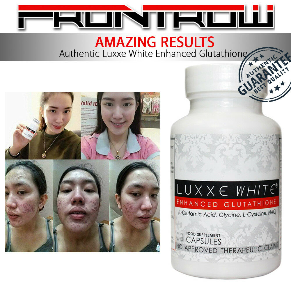 Details about NEW Authentic Luxxe White Enhanced Glutathione & Luxxe Renew  by Frontrow