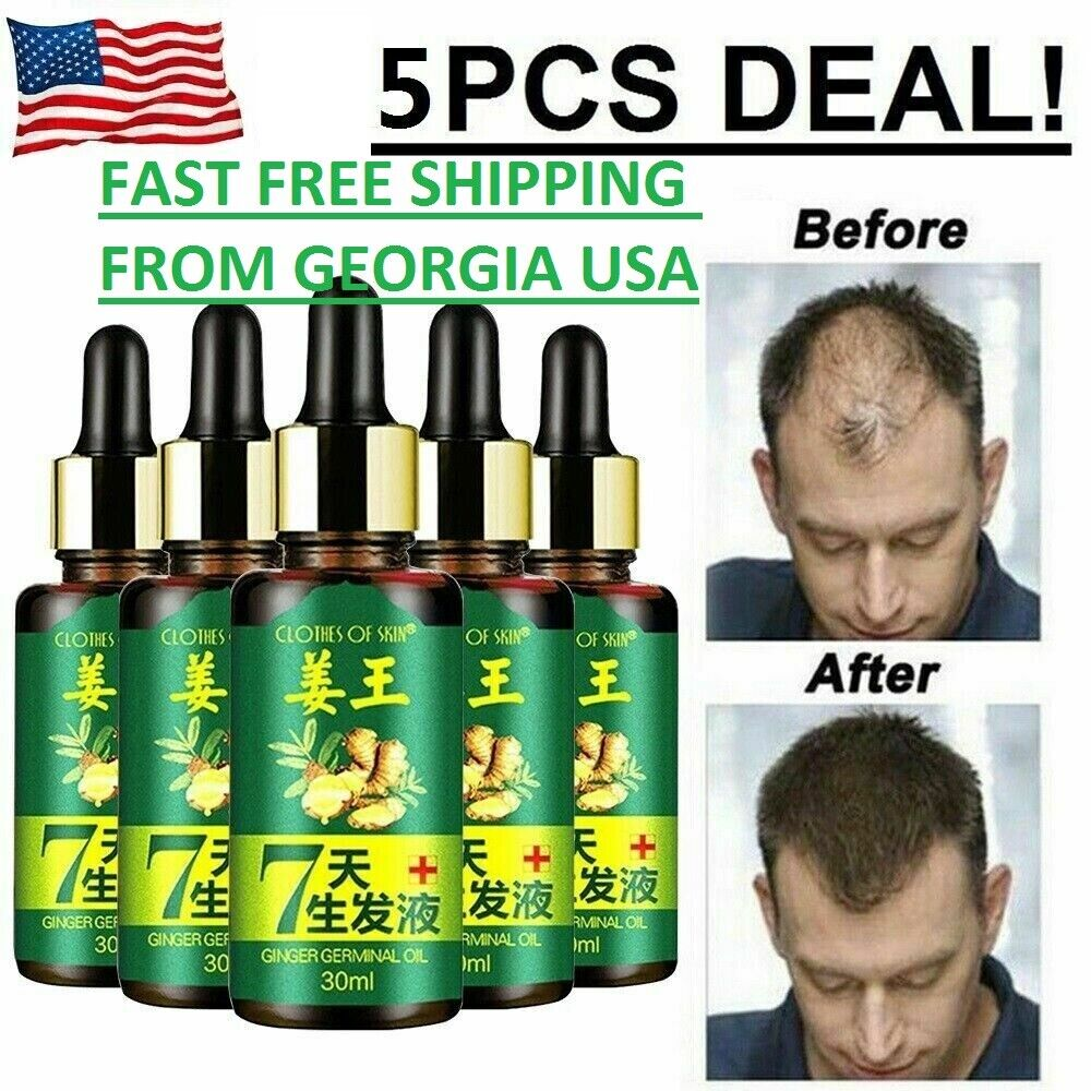 5X 7Day Ginger Germinal Hair Regrowth Serum Hairdressing Oil Hair Loss Hair Care & Styling