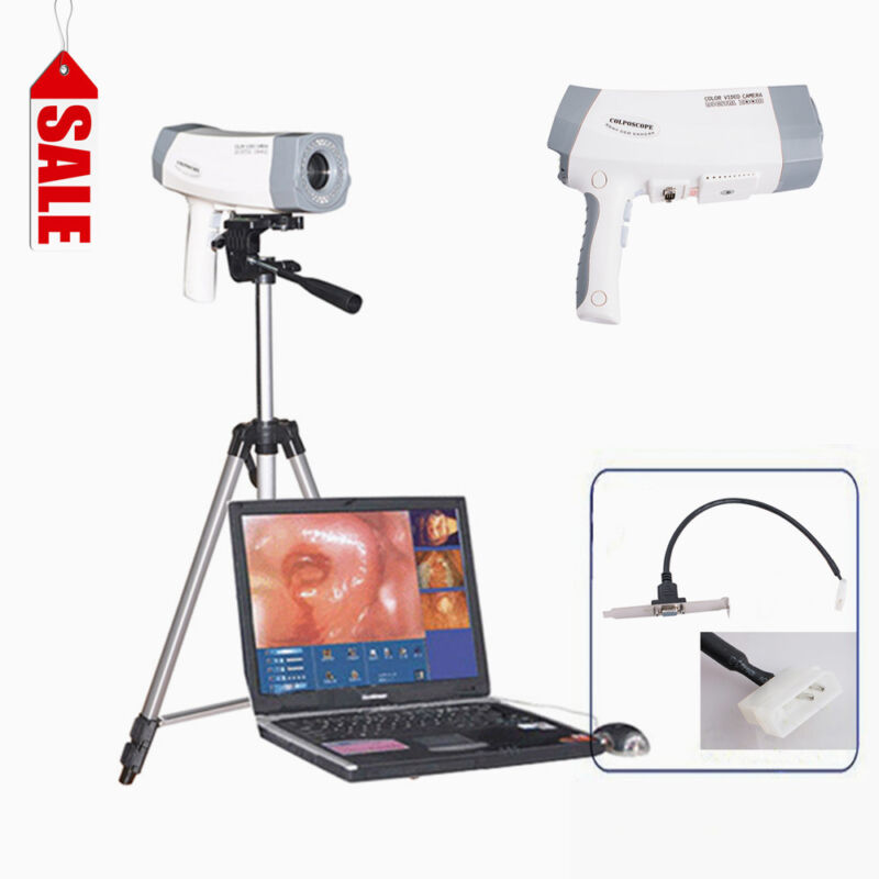 Pro System Video Colposcope Digital SONY Camera High Definition+Software+Tripod