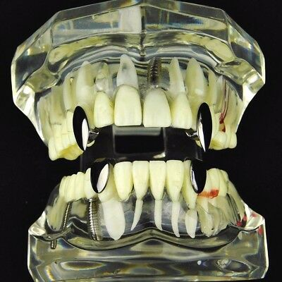Vampire Fang Set Top Fangs & Two Bottom Caps Plain Black Plated Dracula Teeth](Vampire Fangs Caps)