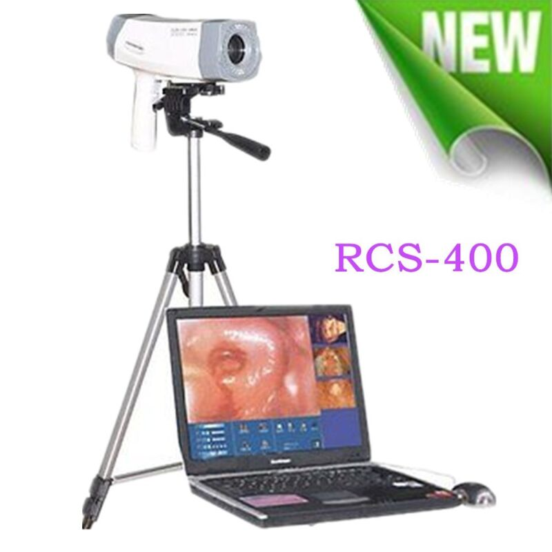 Software Digital Video SONY Camera Electronic Vaginoscopy Colposcope Tripod Sale