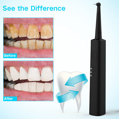 Ifanze Scaler Electric Tooth Cleaner Dental Calculus Stain Remover Cleaning Tool