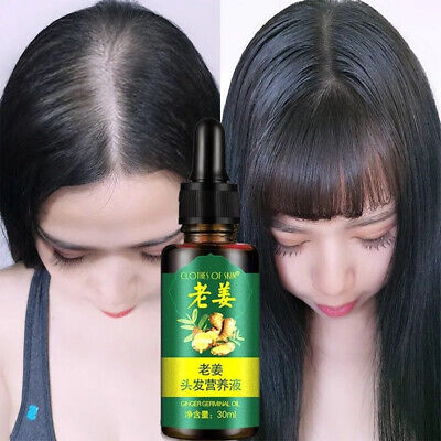 Ginger Germinal Hair Growth Oil Anti-Loss Hair Restoration Extract Pilatory