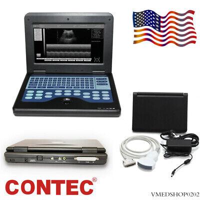 Contec Cms600p2 Portable Ultrasound Scanner Machine Laptop W 3.5mhz Convex Probe