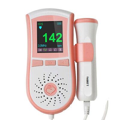 New Model Fetal Doppler Lcd Fetal Heart Monitorwater Proof Probe Us Gel Usps