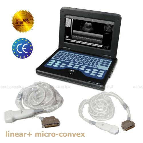 CE Portable LCD Digital Linear Ultrasound Scanner+ Micro-Convex Cardiac 2 Probes