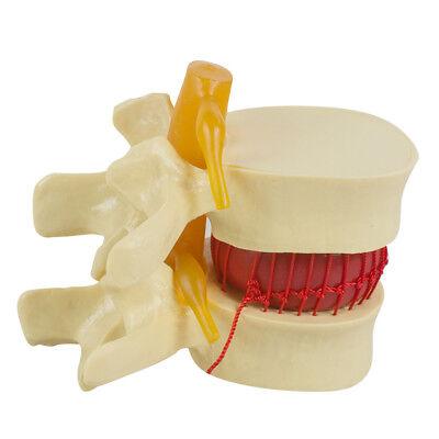 11.5 Dental Medical Demonstration Model Spine Lumbar Disc Herniation Model Tool