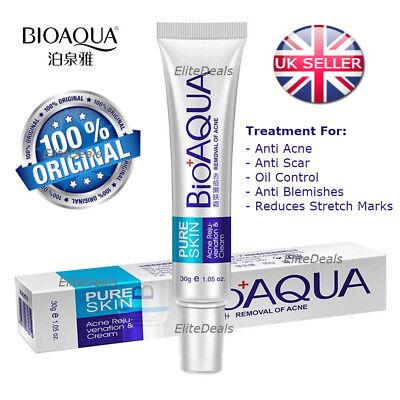 BIOAQUA Pure Skin Anti Acne Scar Blemish Stretch Marks Removal Face Cream 30g UK