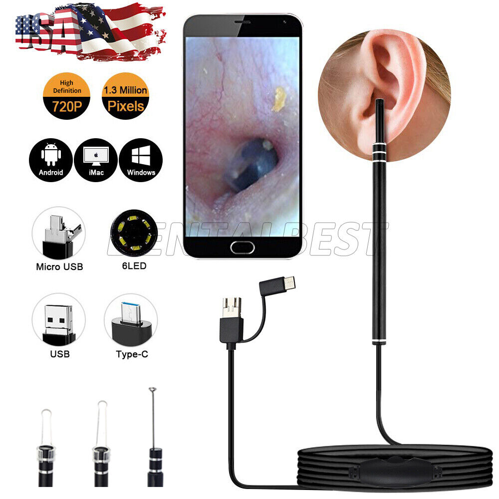 Digital Led Otoscope Ear Camera Scope Earwax Removal Kit Ear