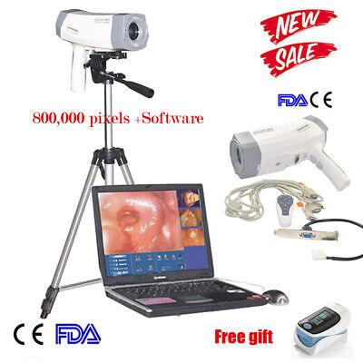 Portable Gynaecology Medical Electronic Colposcope Sony Digital Ccd Colposcopy