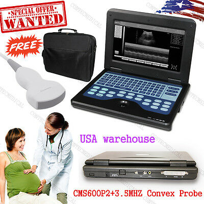 Us Seller Digital Ultrasound Scanner Portable Laptop Machine3.5mhz Convex Probe