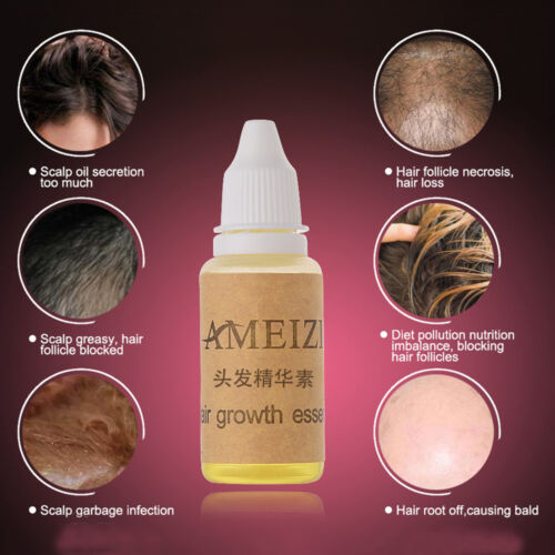 20ml Haarwachstum Essenz Prävention Flüssiges Haar Schnell Wachsen Haarausfall