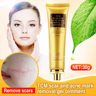 30g Scar Acne Mark Removal Gel Face Pore Skin Repair Stretch Marks Cream Blemish