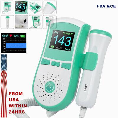 3mhz Probe Pocket Fetal Doppler Prenatal Fetal Heart Rate Monitor 2 Type W Gel