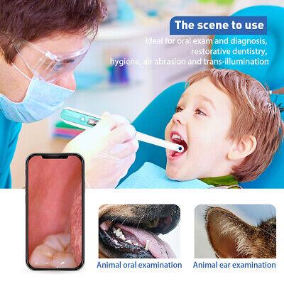 Oral Dental Wifi Endoscope 1080p Fhd Visual Intraoral Camera 8 Adjust Led Lights
