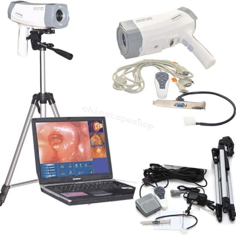 Digital Video 800,000 Electronic Colposcope Vaginoscope+Software Spider FDA CE