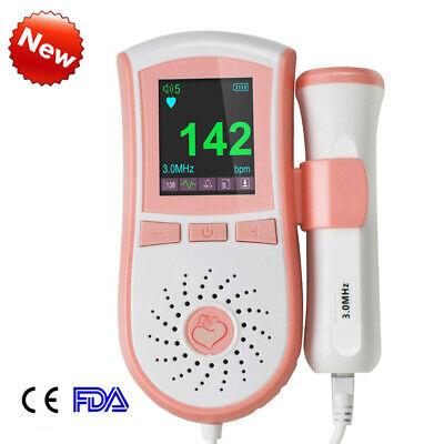 3-5 Day-us Ultrasonic Fetal Doppler 3mhz Lcd Backlight Baby Heart Beat Monitor
