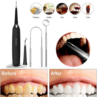 AU Electric Sonic Plaque Dental Scaler Tartar Calculus Remover Tooth Stains Tool
