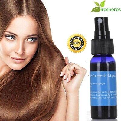 #1 BEST GINGER HAIR FOLLICLE REPAIR OIL CARE FAST GROWTH ESSENTIAL LIQUID 30 (Best Hair Oil Sprays)