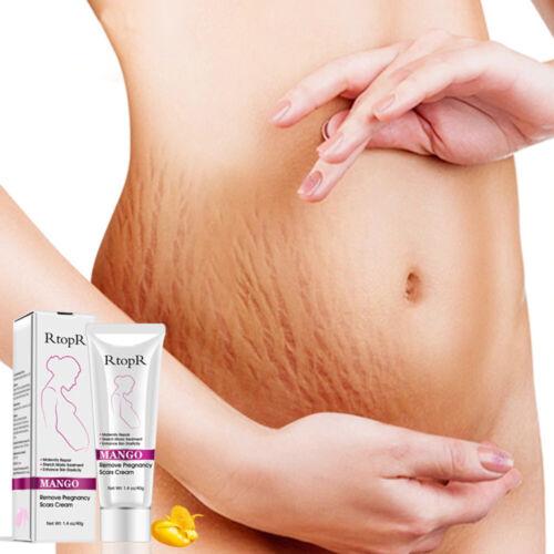 RtopR Mango Stretch Marks Remover Cream Eliminate Maternity Repair Skin Firming