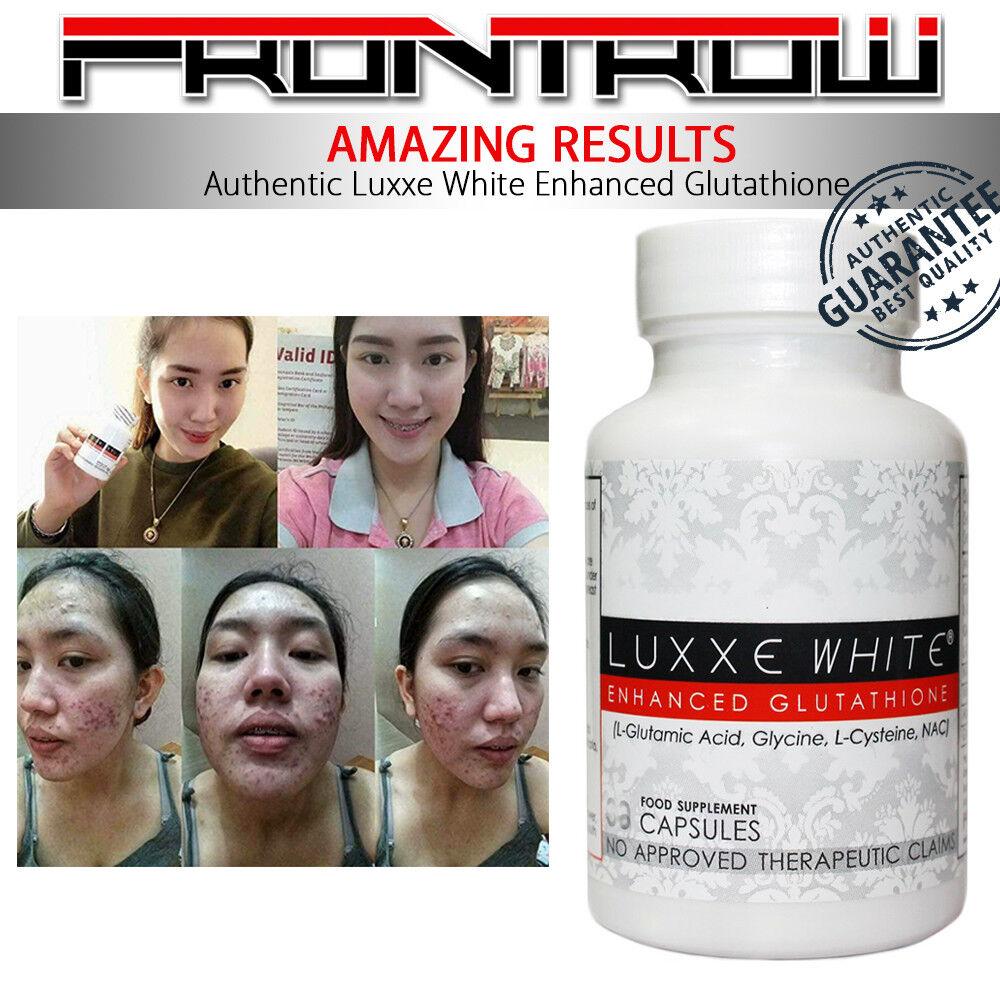 Authentic New Frontrow Luxxe White Protect 01 Whitening Soap Bar Ra Glow Set