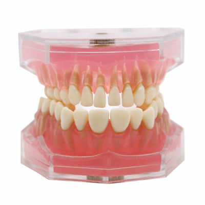 Orthodontic Dental Standard Plastic Teeth Model 4004 With 28 Removeable Teeth
