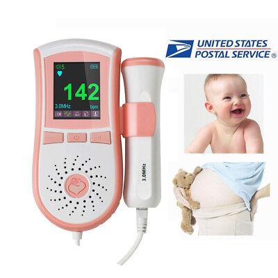 Color Handheld Fetal Doppler Fetal Doppler Baby Heart Monitor Prenatal 3mhz Pink