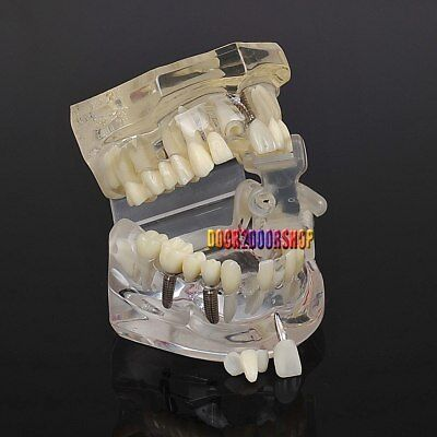 1pc Dental Implant Disease Teeth Model With Restoration Bridge Tooth