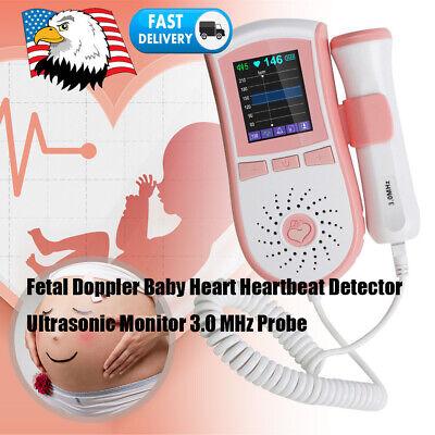 Pregnancy Fetal Doppler Heartbeat Detector Ultrasonic Monitor Probe Portable