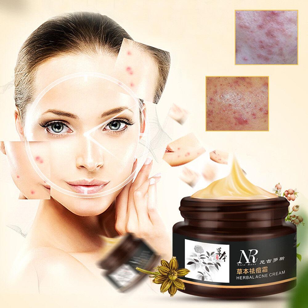 Herb Acne  Blackhead Removal Blemish  Mite Treatment Whitening Face Mask Cream
