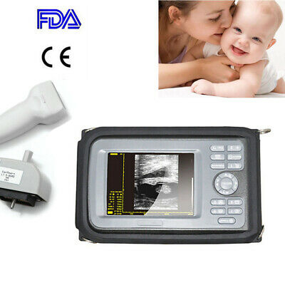Portable Handheld Laptop Ultrasound Scanner Machine With Linear Probe Human Use