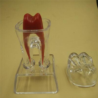 Healthy Crystal Teeth Model Dentistry Base Hard Plastic Teeth Model Tooth Molar