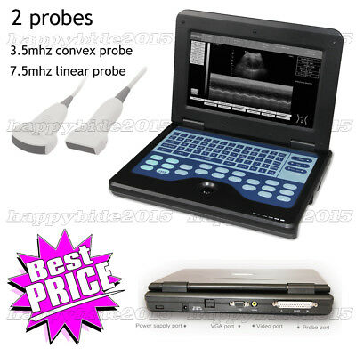 Promotion Laptop Digital Ultrasound Scanner Machine with 2 probes(Convex+Linear)
