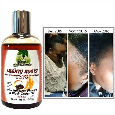 Receding hairline or thin hair growth oil with Jamaican pimento black castor oil ()