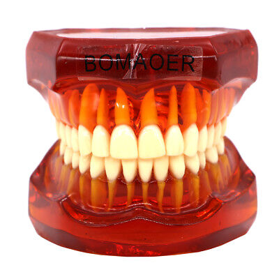 Plastic Study Teeth Model Standard Model Red Transparent 7002 Style