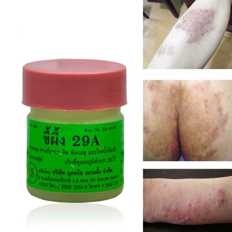 Athletes Foot Antifungal Cream Feet Toe Nail Fungus Treatmen