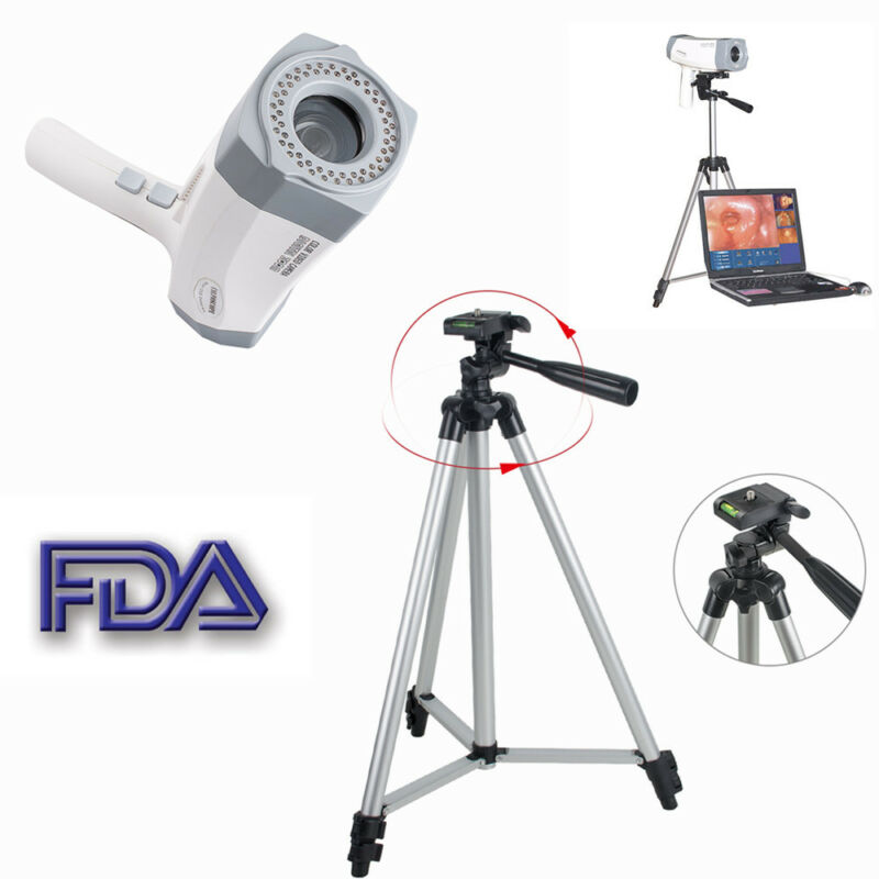 800,000 Pixels Digital Video Electronic Colposcope SONY Camera Kit/set + Tripod