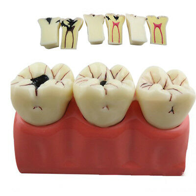 Dentist Dental Teeth Model Patient Education Caries Endodontic Treatment Model