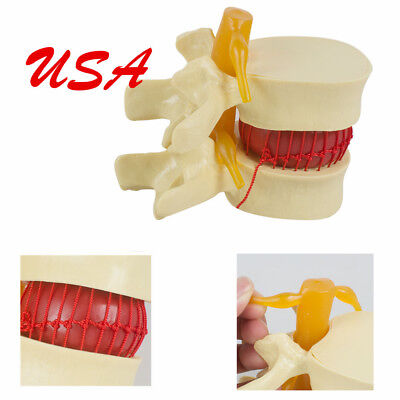 Usa 11.5 Spine Lumbar Disc Herniation Demonstration Model Study Use Teaching