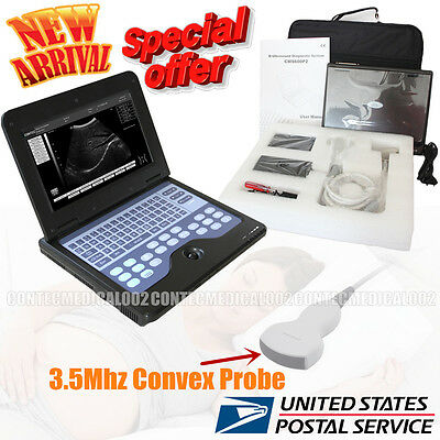 New Ce Portable Usb Digital Ultrasound Machine Scanner 3.5 Mhz Convex Probesw