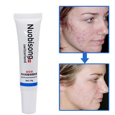 Scar Removal Cream Burn Acne Striae Spots Stretch Mark Dark Remover cream 1pc