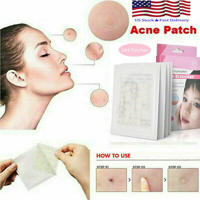 144Pcs Skin Tag & Acne Patch - Hydrocolloid Acne and Skin Tag Remover Patches