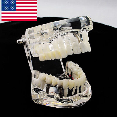 Usa Dental Implant Study Analysis Demonstration Teeth Disease Model Restoration