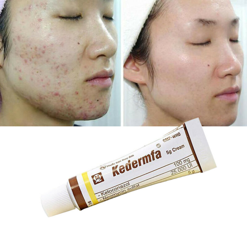 Snake Oil Remove Scar Acne Spots Pigmentation Striae Corrector