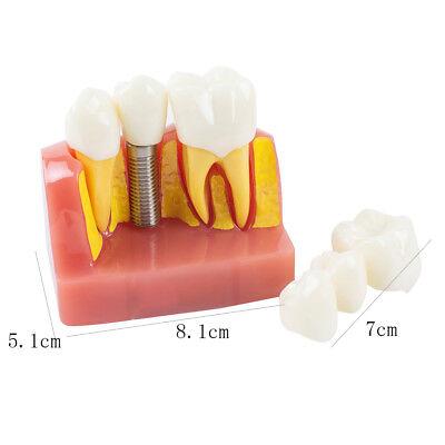 Dental Teeth Model Analysis Demonstration Gingiva Implant Crown Bridge Usa Ship