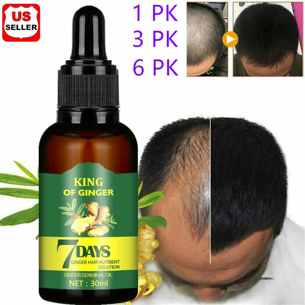 Hair Growth Serum Regrow 7 Day Ginger Germinal Hairdressing Oil Loss Treatment Hair Care & Styling
