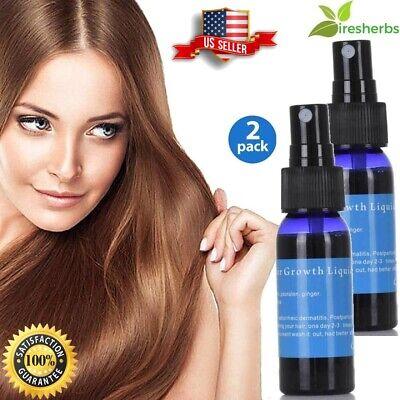 #1 BEST GINGER HAIR FOLLICLE REPAIR OIL CARE FAST GROWTH ESSENTIAL LIQUID 60 (Best Hair Oil Sprays)