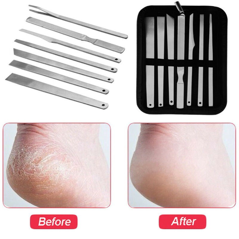 Hard Skin Remover Callus Rasp File Manicure Kits Toe Nail Kn